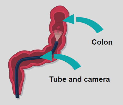 A diagram of a colon with a tube and camera inside.
