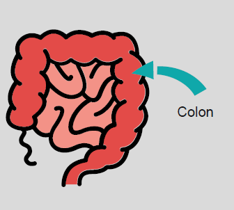 A diagram of the small and large intestine, with an arrow pointing to the colon, which is also called the large intestine.